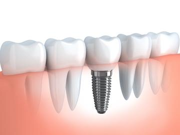 close up of dental implant l dentist near me
