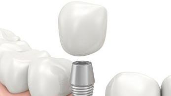 Dental Implant or a Fixed Bridge | Dr. Mark C. Gladnick, DDS