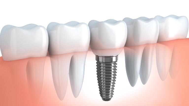 Dental Implants in Wilmington, DE | Drs. Justison and Gladnick