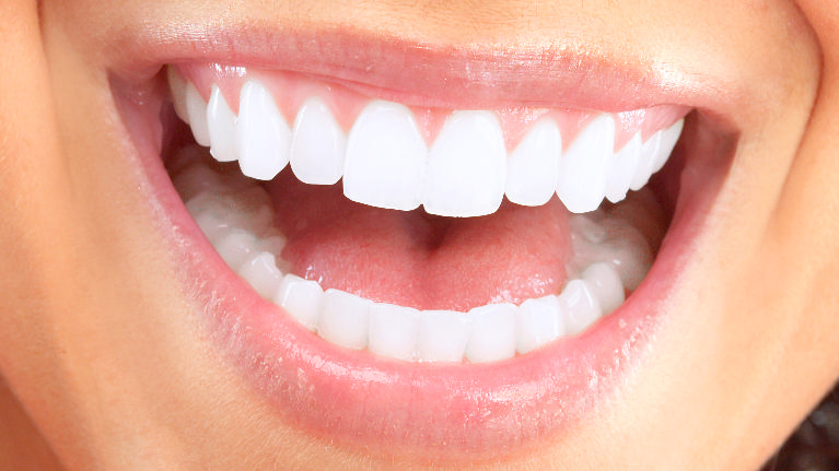 Top Dentist Pike Creek | Woman Smiling
