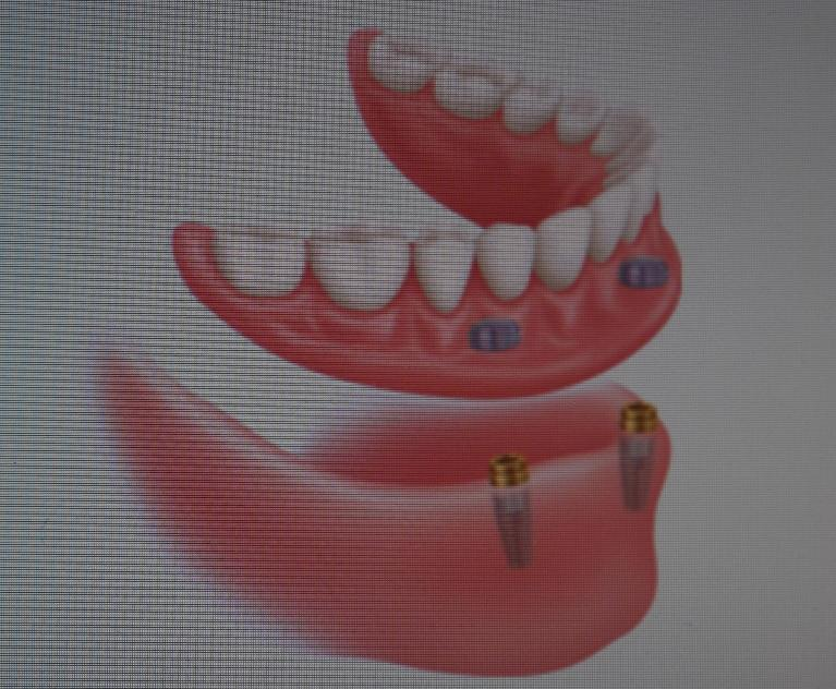 implant retained dentures in pike creek