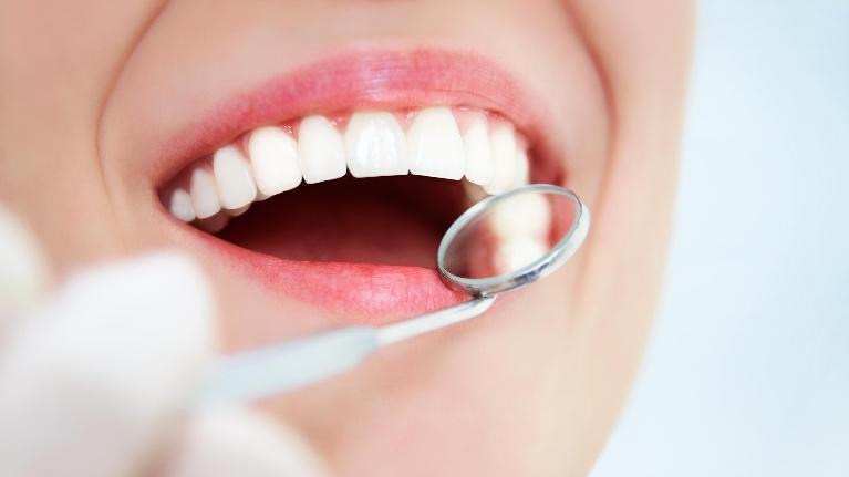 dental fillings in wilmington de