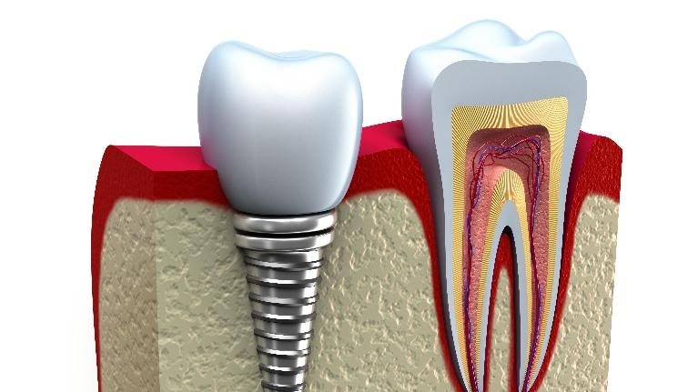 dental implants wilmington de | wilmington de dentist