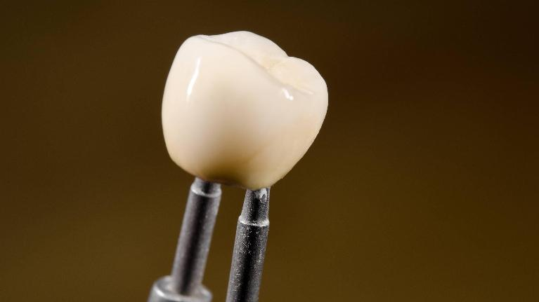 image of a newly crafted dental crown wilmington de l Drs. Justison and Gladnick