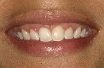 Esthetic-periodontal-Gum-therapy-After-Image