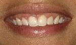 periodontal treatment in wilmington