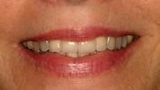 complete smile after porcelain crowns l crowns wilmington de