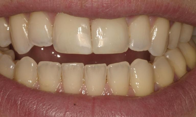 Unsightly gap in front teeth disappears in under 1 hour
