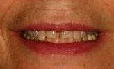dental crowns in wilmington de