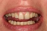 Tooth-Colored-Fillings-After-Image