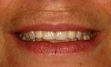 Huge-front-space-very-long-side-teeth-After-Image