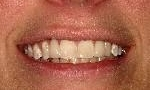 Non-Metal-Tooth-Replacements-After-Image