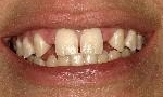 Non-Metal-Tooth-Replacements-Before-Image
