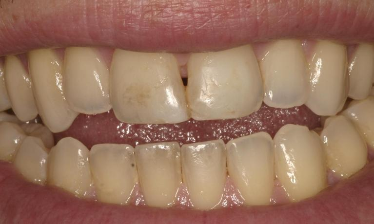Unsightly-gap-in-front-teeth-disappears-in-under-1-hour-Before-Image